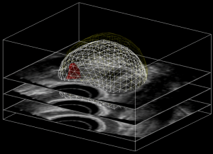 Deformable 3D prostate model registered (aligned) with a 3D ultrasound image
