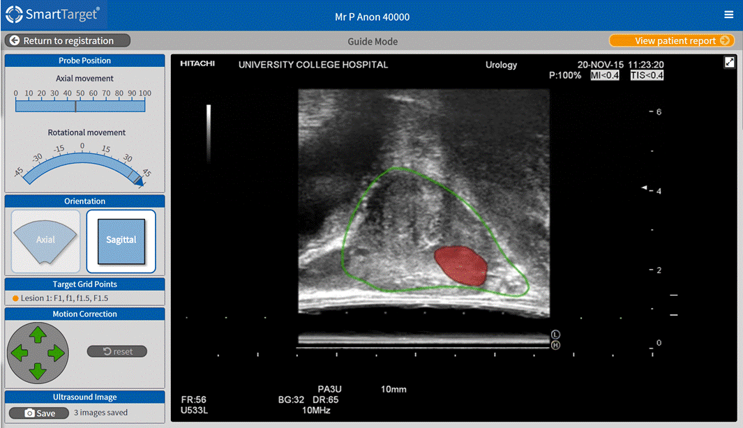 SmartTarget software interface. A realtime ultrasound image of a prostate is shown on the right, superimposed with a graphical representation of a slice through the patient-specific 3D computer model, derived from MRI scans. The target tumour,invisible in ultrasound, is shown in red.
