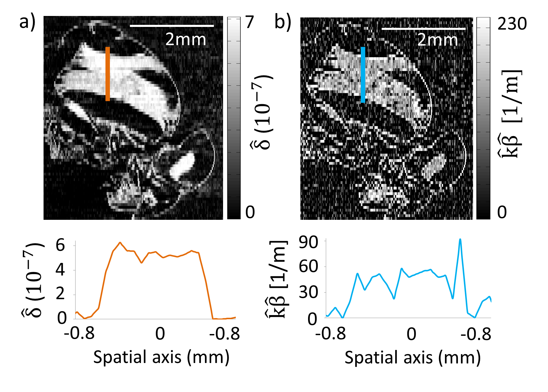 Slices through phase (a) and absorption (b) contrast tomographs of a wasp. The phase contrast image shows an enhanced detail visibility