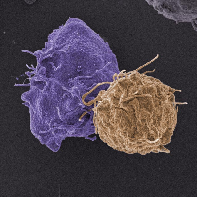 HIV infected cell