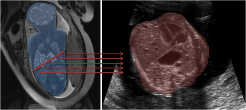 Anatomical information extracted from magnetic resonance imaging (MRI) is propagated to an ultrasound (US) image for surgical navigation purposes